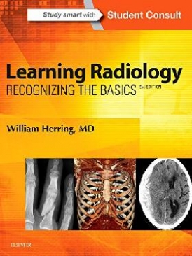 William Herring Learning Radiology: Recognizing the Basics, 3rd Edition